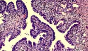 Los genes de la Endometriosis